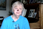 Cancer survivor without prosthetic nose