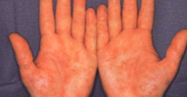 Hands of person with psoriasis