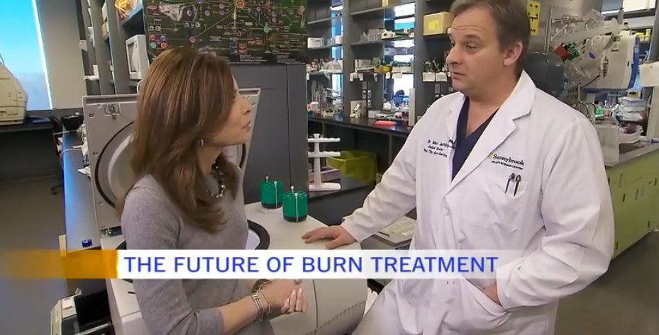 CTV's Dr. Marla and Sunnybrook's Dr. Jeschke talking about burn treatment