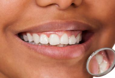 teeth-image