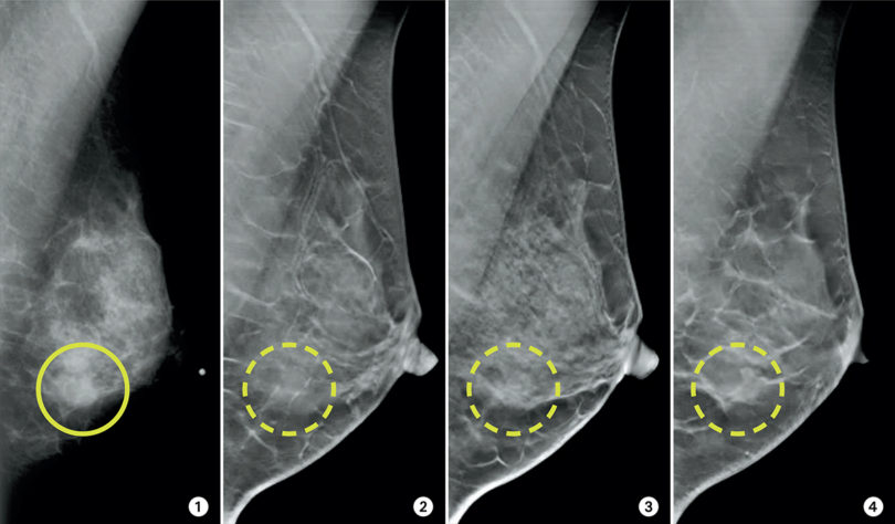 Mammography vs tomosynthesis