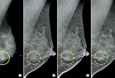 3d mammogram