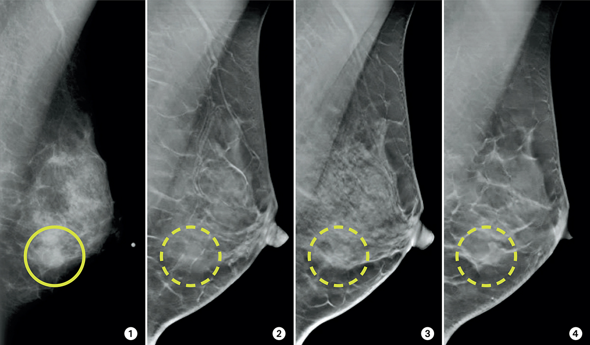 3 D Mammograms May Improve Accuracy Of Breast Cancer Screening