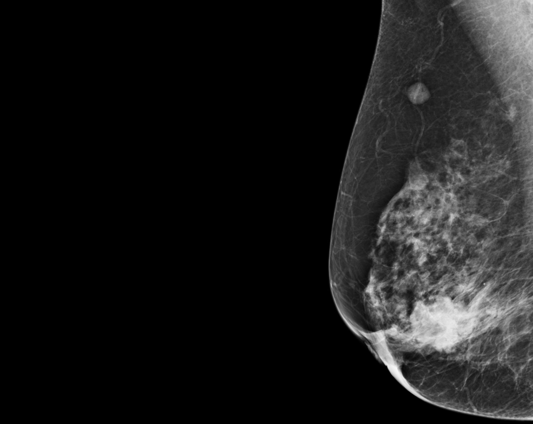Behind The Research 2d Or 3d Mammography For Breast Cancer Screening