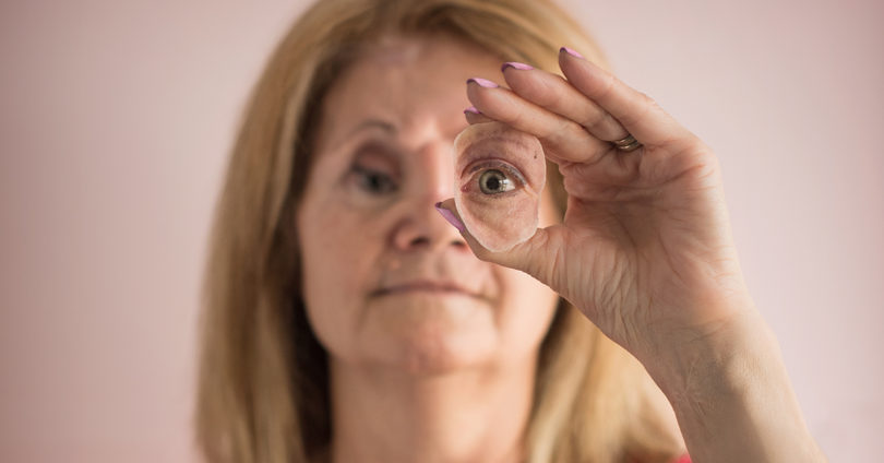 Brenda Coulter with her prosthetic eye