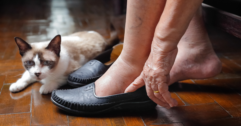 Older woman putting shoes on