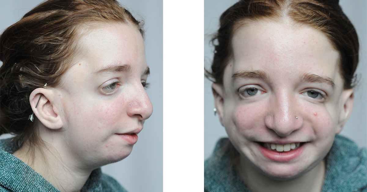 Katie Atkinson smiles while wearing her prosthetic ears