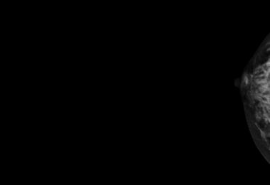 image of mammogram